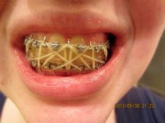 Rubber bands used for the treatment of TMJ to keep the mouth properly aligned Liquid Diet, Rubber Bands, Bones, Teeth, It Works, Tooth, Nailed It, Dice, Legs