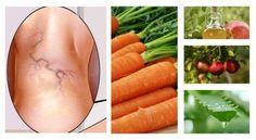 Hausmittel gegen Krampfadern mit Aloe, Karotten und Apfelessig