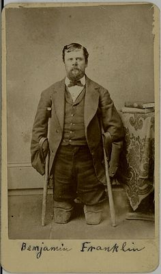 CDV Civil War AMPUTEE - All Limbs Lost