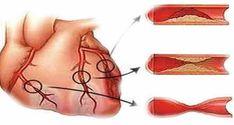 Un articol de Petrut  In ultimii ani, bolile cardiovasculare precum ateroscleroza, hipertensiunea si hipercolesterolemia s-au inmultit ingrijorator, in mare parte ca rezultat al alimentatiei nesanatoase si a sedentarismului. Netratate, aceste boli pot avea consecinte letale.  In continuare iti recomandam un remediu excelent pentru aceste afectiuni problematice. Pentru rezultate optime, te sfatuim sa respecti … Good To Know, Health Fitness, Gay, Healthy, Medicine, Recipes, Health, Fitness, Health And Fitness