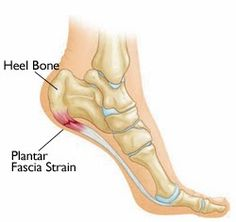 Anne Reflexology: Plantar fasciitis, reflexology and foot mobilisation