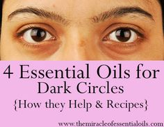essential oils for dark circles