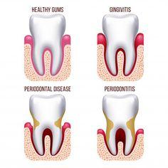 Salud Dental- Santé Dentaire Blog (dentairemytripdiary) on Pinterest