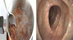 Os intestinos são o grande segredo da saúde, e por isso um tratamento voltado para a restauração da saúde deve começar pelos intestinos.