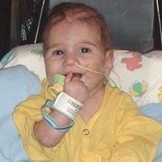 Adams-Oliver Syndrome Pictures - Bing Images