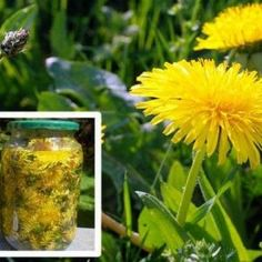 Cholesterol Cure - Even though considered a weed, dandelion root has a long history of therapeutic use. In fact, this extremely beneficial plant has the ability to treat allergies, lower cholesterol levels, stimulate the. - The One Food Cholesterol Cure Natural Cures, Natural Healing, Cholesterol Levels, Vitiligo Treatment, Cancer Treatment, The Cure, Cancer Cure, Cancer Cells, Medicinal Plants