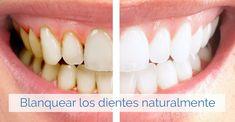 Tratamientos caseros para luchar contra los dientes amarillos