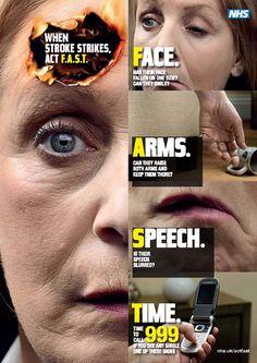 FAST stroke awareness poster