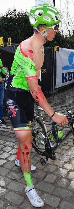 Sepp Vanmarcke, pechvogel in de Ronde van Vlaanderen, breekt pink.