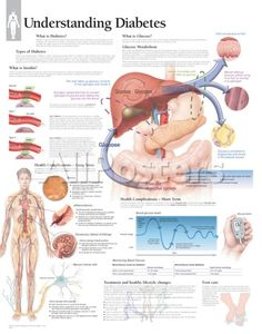 Understanding Diabetes Educational Chart Poster Education Poster - 56 x 71 cm Beat Diabetes, Diabetes Mellitus, Diabetes Quotes, Diabetes Books, Diabetes Facts, Diabetes Awareness, Diabetes Information, Diabetes In Children