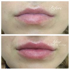 #lips #lipsbycourt #courtcreates #dermalfiller #dermalfillerlips #aesthetics #beautification #enhance #pout #kiss #results #lipaugmentation #cosmeticinjectables #nurse #injector #cosmetics #lcaparramatta #lcapenrith #lipstolove #aestheticsbycourtney #sydney #sydneylips #mylca