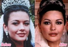 Catherine Zeta Jones exhibits the remarkable difference blepharoplasty can make in 'waking up' the eyes.