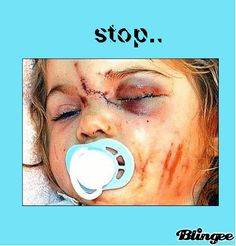 "Domestic Violence happened to this baby because the neighbours decided to ""stay out of it"". Don't ""stay out of it"". Report it! EVERY time!! enfants battus -"