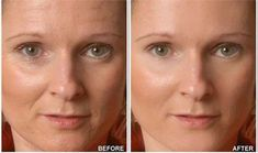 Want to get rid of wrinkles? anti-wrinkle cream helps in preventing and reversing wrinkle lines from the skin. It also helps in nourishing the skin. Massage the skin under your eyes gently with anti-wrinkle cream and see the difference in few days. Face Wrinkles, Prevent Wrinkles, Beauty Secrets, Beauty Hacks, Wrinkle Remedies, Eye Wrinkle, Wrinkle Creams, Face Creams, Healthy Beauty