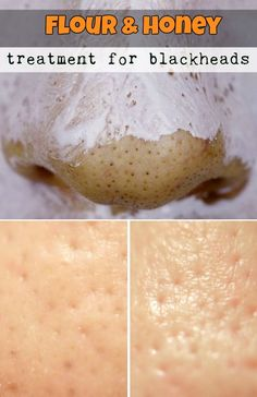 What are blackheads? Blackheads are small bumps that appear on your skin due to clogged hair follicles. These bumps are called blackheads because the surface looks dark or black. Blackheads are a m… Blackhead Remedies, Blackhead Remover, Acne Treatment, Blackhead Mask, Homeopathic Remedies, Treatment For Blackheads, Makeup Remover, Skin Care Diy Blackheads, Eyebrows