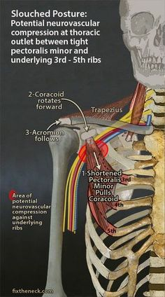 Overcoming Chronic Neck Pain: Postural Causes and A Unique Exercise Fix Eliminate risk of thoracic outlet syndrome Muscle Anatomy, Massage Techniques, Physical Therapist, Anatomy And Physiology, Pain Management, Neck Pain, Rib Pain, Occupational Therapy, Massage Therapy
