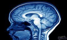 """دراسة حديثة تعلن اقتراب علماء من اكتشاف علاج فعال ضد الزهايمر: تمكن العلماء من تحقيق """"اختراق"""" جديد يتعلق بمرض الزهايمر، يجعلهم أقرب للوصول…"""