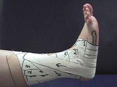 Ankle tape Open Basketweave - Melanie Tuck Method. Red Deer Alberta Canada For acute ankle sprains