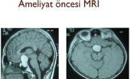 Hipofiz Tümörleri http://www.nihategemen.com/beyin-kanamasi/