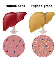 bebidas nocturnas para el hígado