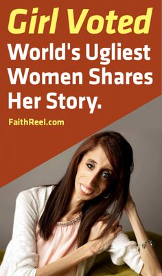 Girl Voted The World's Ugliest Women Tells Her Story. You Don't Want To Miss This!