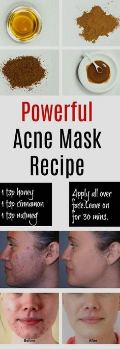 Home Remedies for Pimples and Blackheads for Oily Skin - best home for a. Home Remedies for Pimples and Blackheads for Oily Skin – best home for acne overnight – homemade acne mask – how to get rid of pimples and blackheads overnight skincare Back Acne Treatment, Natural Acne Treatment, Natural Skin Care, Natural Beauty, Acne Treatments, Overnight Acne Treatment, Natural Face, Homemade Skin Care, Skin Tips