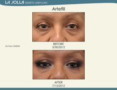 Patient treated with Artefill at La Jolla Cosmetic Laser Clinic. Under Eye Fillers, Facial Fillers, Laser Clinics, Happy Skin, Salicylic Acid, New Skin, How To Apply Makeup, La Jolla