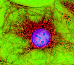 Image of the Week - March 14, 2016  CIL:42508 - http://www.cellimagelibrary.org/images/42508  Digital multi-color immuno fluorescence microscopy and phase contrast image of fibroblast cells in culture stained with various antibodies. The Phase contrast (green) image was overlayed over the microtubule (red) and nucleus (Blue) image. Honorable Mention, 2007 Olympus BioScapes Digital Imaging Competition.  Jan Schmoranzer and 2007 Olympus BioScapes Digital Imaging Competition®  CC - by-nc-nd