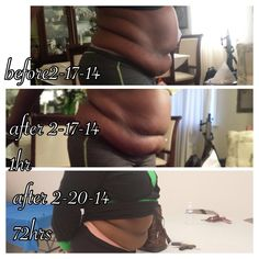 She loved her wrap results so much, she became a distributor! It really works!