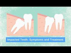 Impacted Wisdom Teeth Symptoms www.studsmiles.com