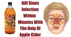 Sinus infection is an inflammation of the membrane and the tissue and it often causes fevers, headaches and pain in the face. Chronic sinusitis can last for about 12 weeks, or if it is not treated, even longer...