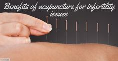 Dr John Tsagaris shares his wealth of knowledge of Traditional Chinese Medicine, and shares how acupuncture could help benefit infertility issues
