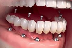 Cosmodent India recommends the treatment of dental implants for utmost protection and life-long benefits. Our trusted cosmetic dentists will provide absolute dental comfort and regain your cute smile for several upcoming years. How To Remove, How To Apply, How To Make, Creme Anti Rides, Lunge, Oreo Pudding, Oreo Brownies, Oreo Fudge, Beginner Painting