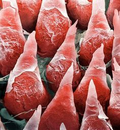 Dentaltown - Does a zoomed in view of the human tongue convince you the dentist, assistant, and hygienist should all be using magnification?