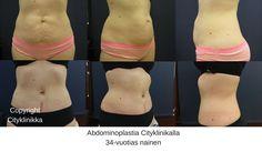Ennen ja jälkeen - abdominoplastia. Kysy lisää plastiikkakirurgiltamme: riikka.veltheim@cityklinikka.fi