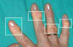 <p>A artrite está se tornando muito comum tanto em homens como mulheres. Está associada ao uso excessivo das articulações, trauma ou mesmo uma infecção. Tanto para a saúde como para a estética a artrite é muito negativa, além deincómodae dolorosa.Quem tem artrite costuma evitar os tratamentos médicos como infiltração e …</p>