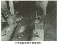 Unit 731 was a covert biological and chemical warfare research and development unit of the Imperial Japanese Army that undertook lethal human experimentation during the Second Sino-Japanese War (1937–1945) and World War II. It was responsible for some of the most notorious war crimes carried out by Japanese personnel.