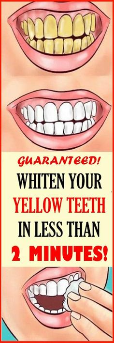 Whiten Your Yellow Teeth In Less Than 2 Minutes! Whiten Your Yellow Teeth In Less Than 2 Minutes! Whiten Your Yellow Teeth In Less Than 2 Minutes! Health Tips For Women, Health And Beauty Tips, Health Advice, Teeth Whitening Remedies, Natural Teeth Whitening, Teath Whitening, White Teeth Remedies, Health Remedies, Home Remedies
