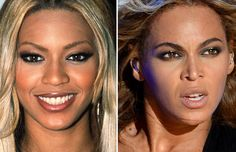 25 Celebrities Who Have Had Nose Jobs http://buzzsauce.co.uk/showbiz/25-celebrities-who-have-had-a-nose-job/