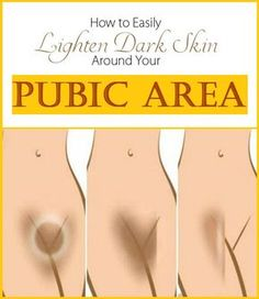 How to Lighten Skin Around Your Pubic Area - How To Lighten Dark Inner Thighs, Butt And Bikini Area Beauty Care, Beauty Skin, Health And Beauty, Piel Natural, Natural Skin, Natural Texture, Natural Beauty, Skin Tips, Skin Care Tips