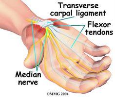 นพ.มานิตย์ วัชร์ชัยนันท์ : เส้นประสาทบริเวณข้อมือถูกกด (Carpal tunnel syndrom...