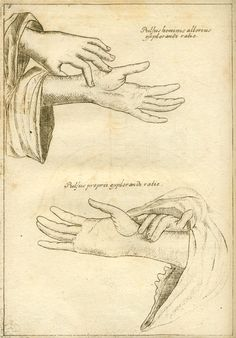 Manual pulse monitoring for therapeutic diagnosis in Chinese sphygmology. From Andreas Cleyer's Specimen Medicinae Sinica…1682.