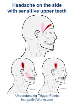There are 3 or 4 patterns that come off the trigger points in the temporalis. Each one has a band of pain that extends upward and associated sensitivity in the upper teeth. Like the bands of pain, …