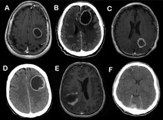 MAGIC DR - a handy mnemonic used to remember the potential causes of a cerebral ring enhancing lesion. M - Metastasis A - Abscess G - Glioblastoma multiforme I - Infarct (subacute phase) C - Contusion D - Demyelinating disease (eg. tumefactive MS) R. Brain Lesions, Mri Brain, Radiology Imaging, Medical Imaging, Brain Anatomy, Medical Anatomy, Demyelinating Disease, Lesión Cerebral, Advanced Nursing