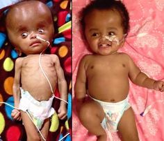 """Mom Tries to Kill """"Cursed"""" Baby by Drinking Poison—2 Yrs Later, You Won't Recognize Her Face"""