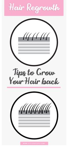 25 Foremost Tips to Regrow You Hair Naturally - Hair Loss Baby Hair Loss, Hair Loss Cure, Hair Loss Remedies, Acne Remedies, Hair Regrowth Tips, Natural Hair Regrowth, Natural Hair Styles, Argan Oil For Hair Loss, Best Hair Loss Shampoo