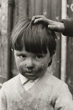 Untitled [boy with dirty face and hand on head]