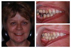 Affordable dental implants abroad
