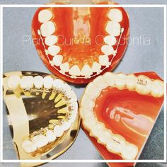 Aparelho ortodôntico invisível: nossa especialidade. Qual é mais invisível: #aparelhodeSafira  #aparelholingual  ou #invisalign ? #love #dentistry #estética #fitness #bh #belohorizonte #odontoporamor #aparelhoinvisivel #pierrecunhaortodontia #follow #eusoubh #girl #blessed #smile #instacool #beauty by pierrecunhaortodontia Our Invisalign Page: http://www.myimagedental.com/services/cosmetic-dentistry/invisalign/ Other Cosmetic Dentistry services we offer…