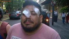 Docente quedó ciego de un ojo al recibir bala de goma en los incidentes frente al Congreso